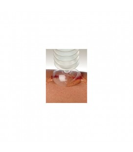 Igloo rinkinys žaizdų higienai N1